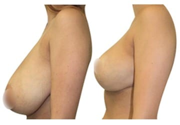 Simply before and after pictures breast
