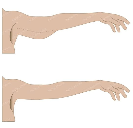 Upper Arm Lift Abroad - Get Rid of Saggy Skin on Your Arms