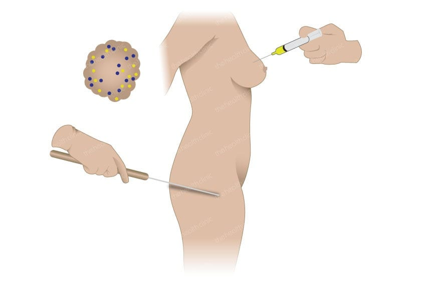Fat transfer (lipofilling)