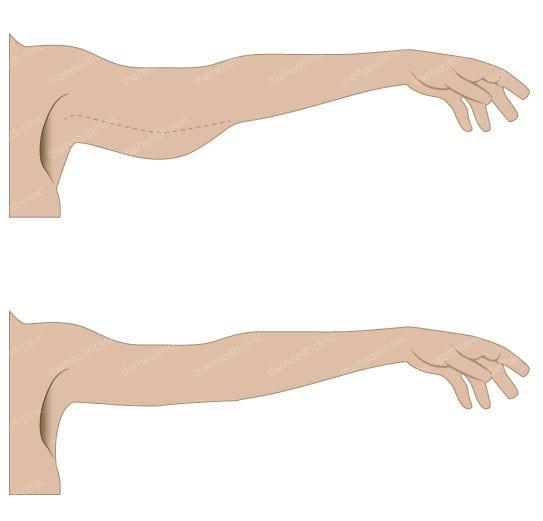 Käsivarsien kiinteytys