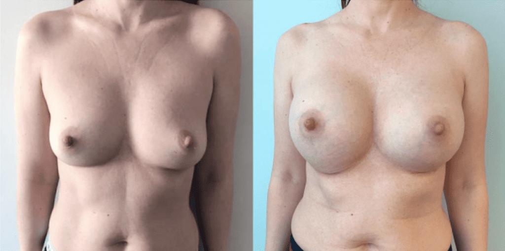 Увеличение груди 5