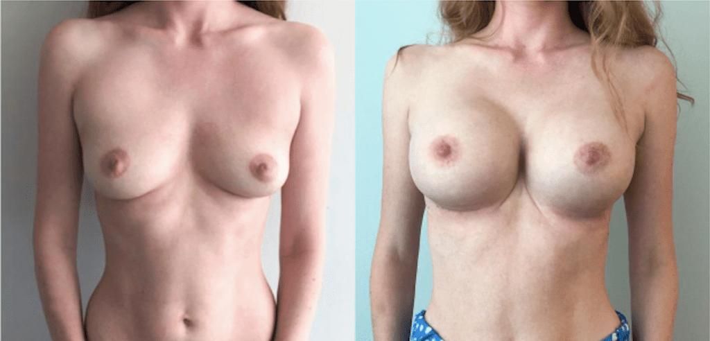 Увеличение груди 3