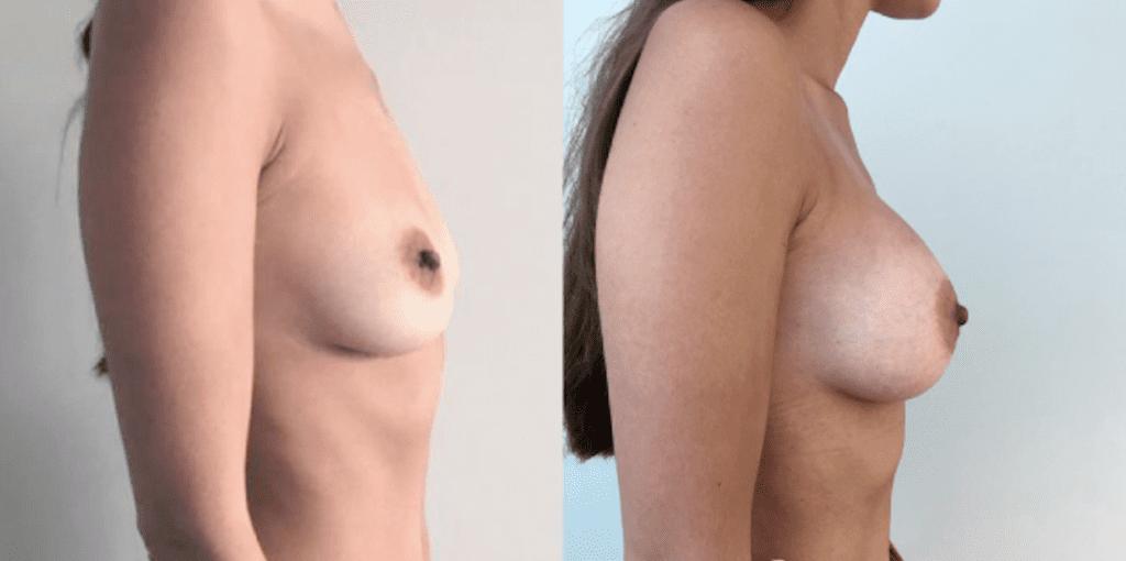 Увеличение груди 7