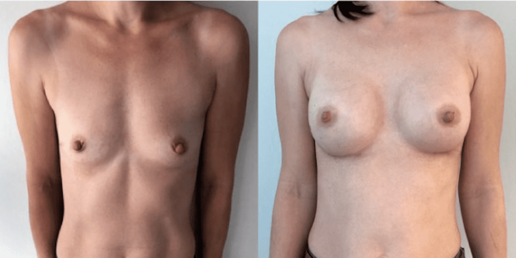 Увеличение груди 6