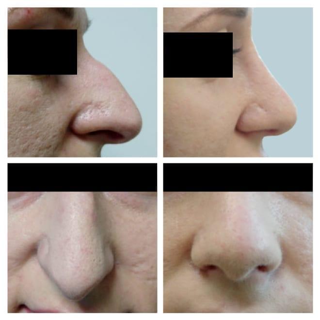 ninaoperatsioon enne ja pärast