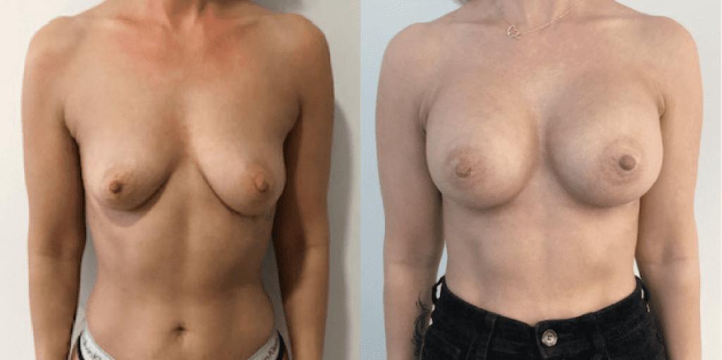 rintojen suurennus ennen jälkeen