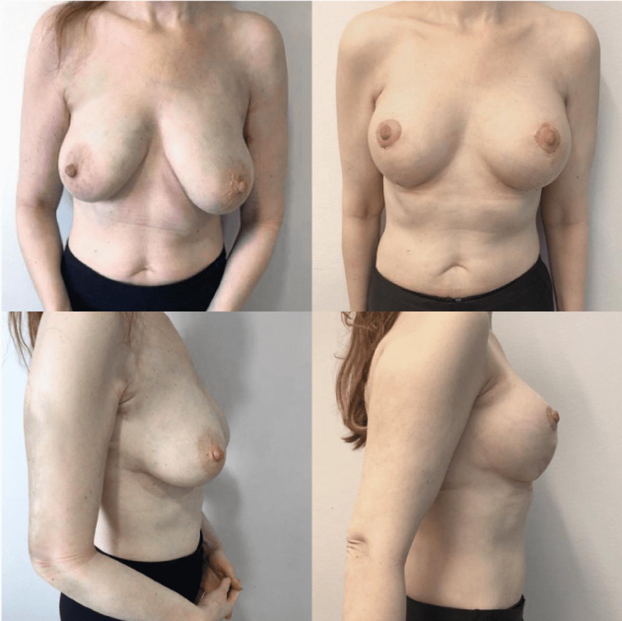 rintojen kohotus ennen ja jälkeen