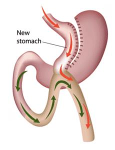 Мини-шунтирование желудка