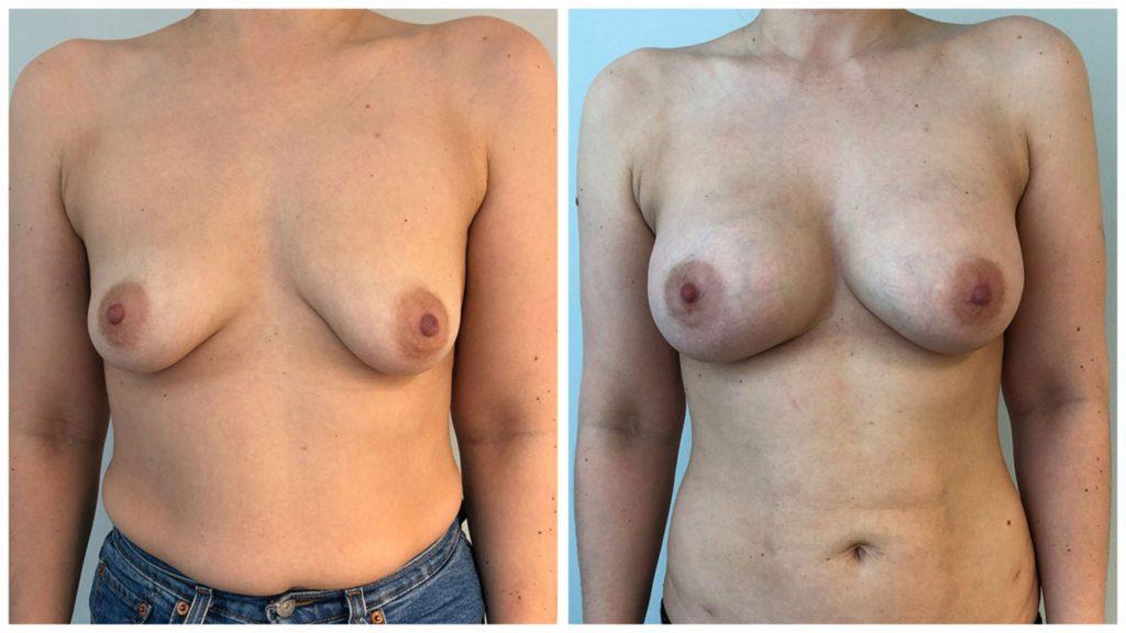Lipofilling enne ja pärast 3