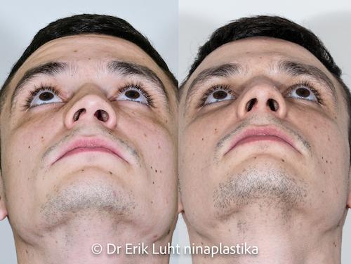 Ninaoperatsioon (rinoplastika) 8