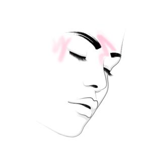 """Botuliintoksiin – 2 piirkonda: Silmade ümbrus ehk """"naerukortsud"""" + kurjusekorts"""