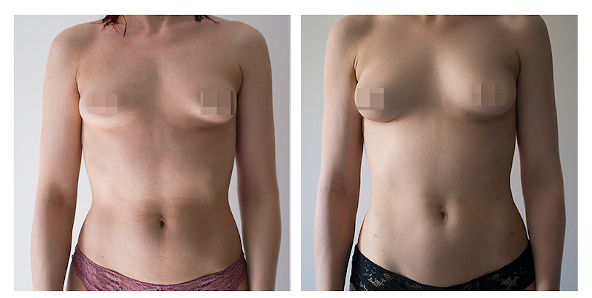 lipofilling_before_after