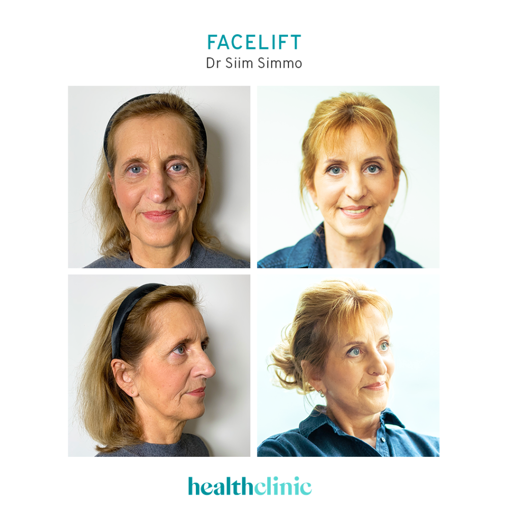 Facelift_Dr Siim Simmo